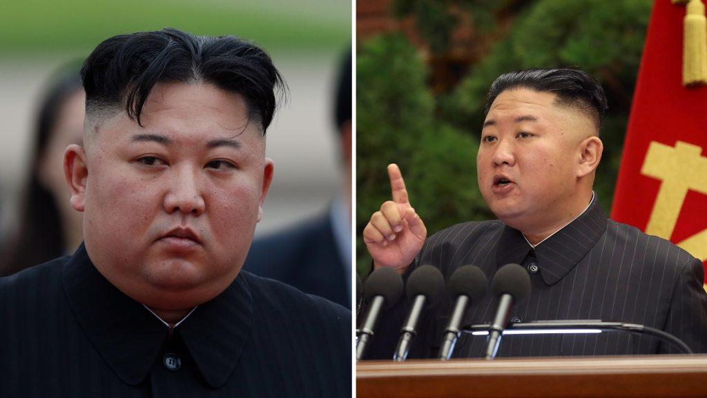 Head bandages raise new questions about Kim Jong Un's health